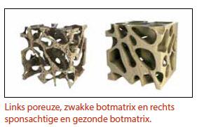 Poreuze botten